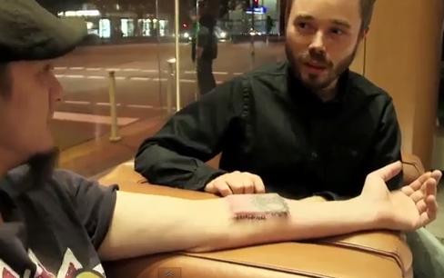 Tim Cannon com o Circadia implantado em seu braço esquerdo, ainda com as suturas aparentes