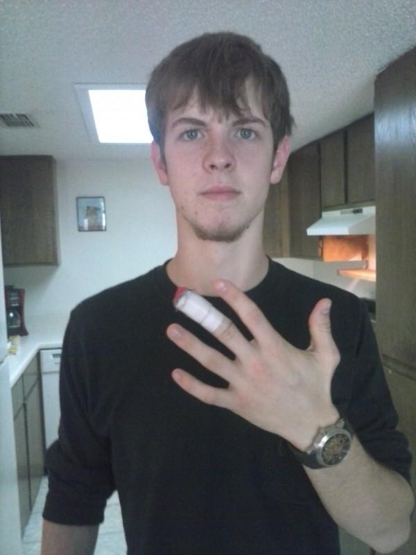 Peyton e seu dedo com o ímã implantado, ainda com curativos