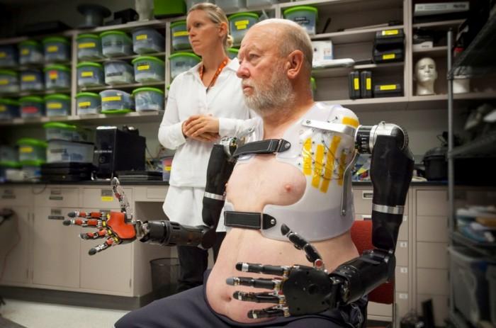 Braços robóticos de Les Baugh