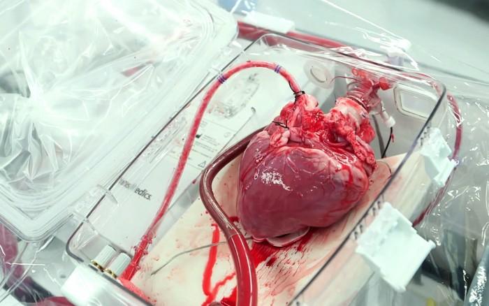 Organ Care System (OCS)