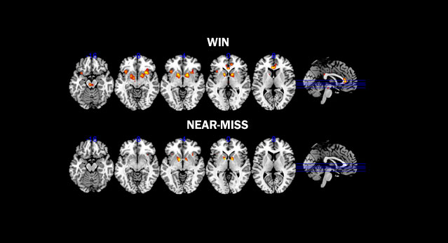 Gambling brain win
