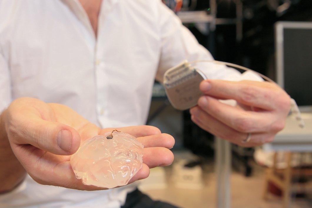 O implante