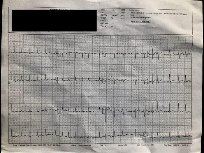Eletrocardiograma confirma arritmia cardíaca