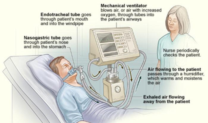 Ventilador médico mecânico