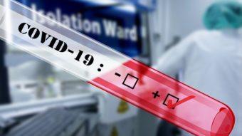IgG e IgM: entenda as siglas do Teste de Anticorpos Coronavírus