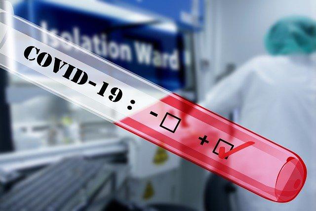 Teste de Anticorpos Coronavírus/Pixabay/Gerd Altmann