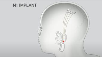 Elon Musk diz que Neuralink fará streaming de música no seu cérebro