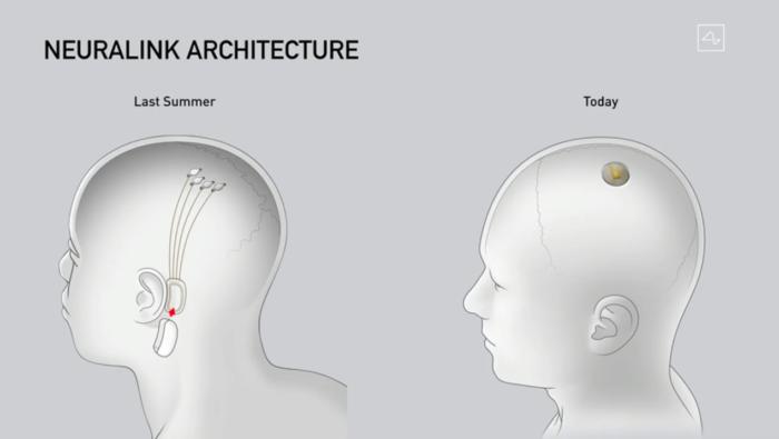 nova arquitetura chip neuralink