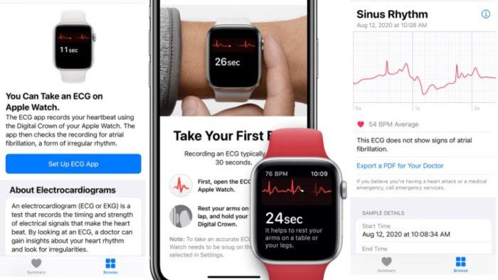 Como fazer um eletrocardiograma no Apple Watch [ECG] (Imagem: Reprodução/ Apple)