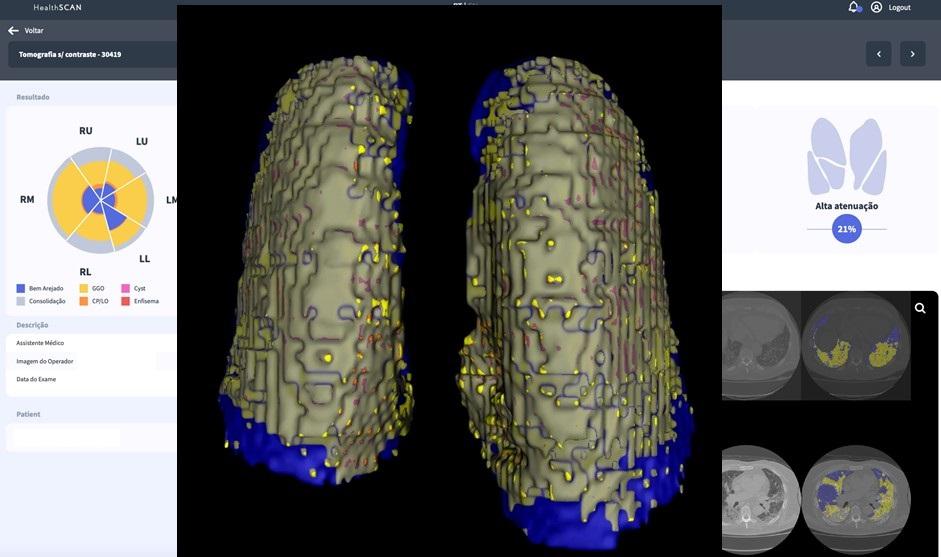 Plataforma CovidScan em ação na análise de tomografia